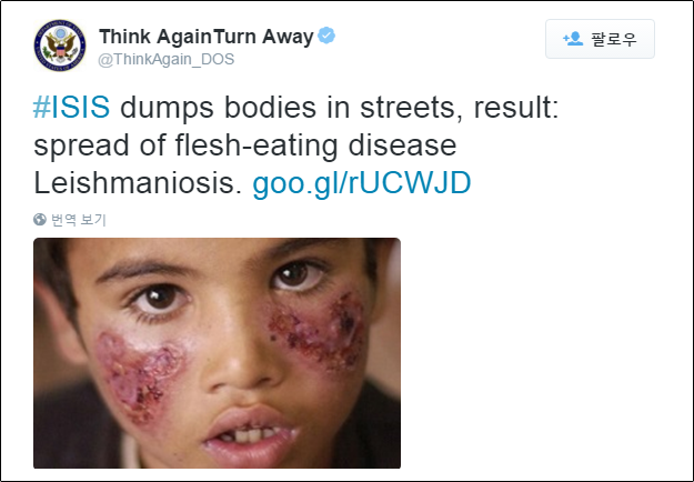 The US State Department has posted a Rudaw article on its official Twitter account about leishmaniasis which is spreading across Syria.